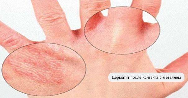 контактный дерматит диагностика