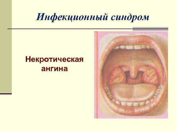 Некротическая ангина: признаки и симптомы заболевания, провоцирующие факторы и лечение