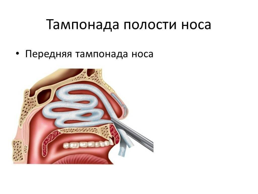 Передняя и задняя тампонада носа при кровотечении