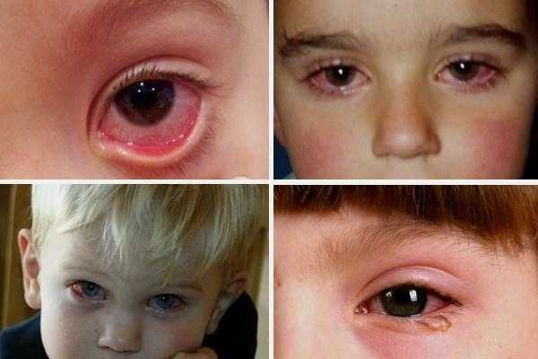 аллергический конъюнктивит симптомы и лечение у детей
