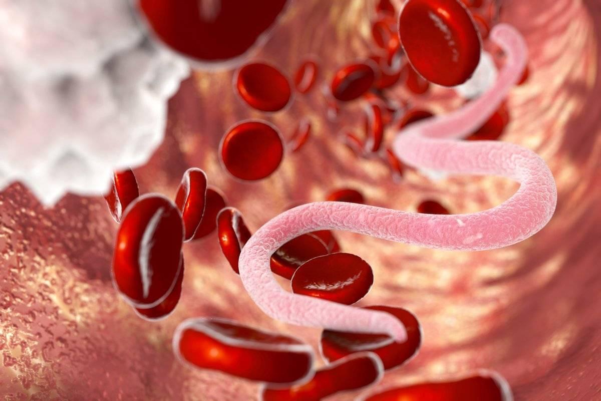 Паразиты человека. болезни от паразитов