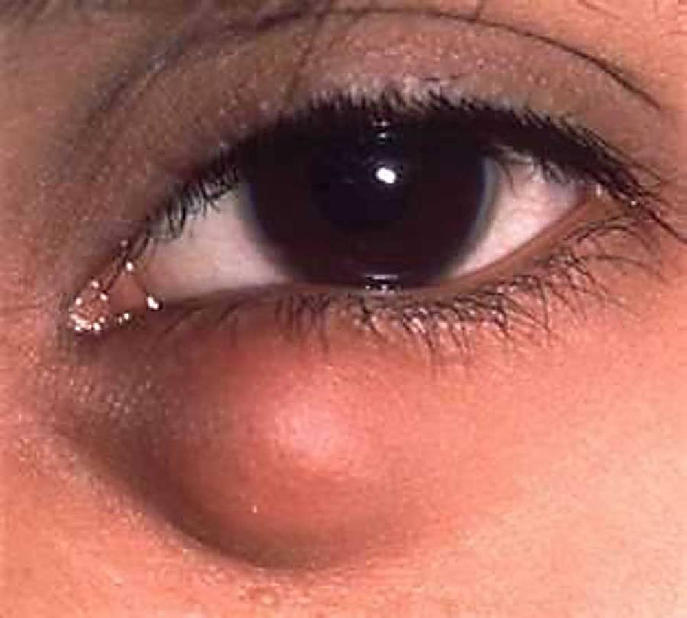 Киста на веках глаз как лечить. киста молля: симптомы, причины, традиционное и оперативное лечение, консультации врачей
