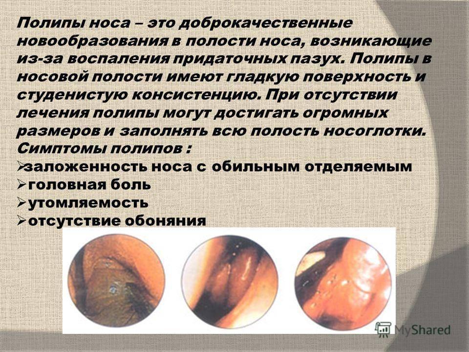 Полипы в носу. причины, симптомы и признаки, диагностика и лечение. удаление полипов в носу: операция, удаление лазером, шейвером, эндоскопическое удаление. народные средства.