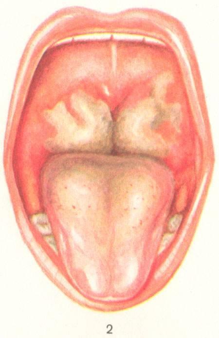 как убрать налет с горла при ангине