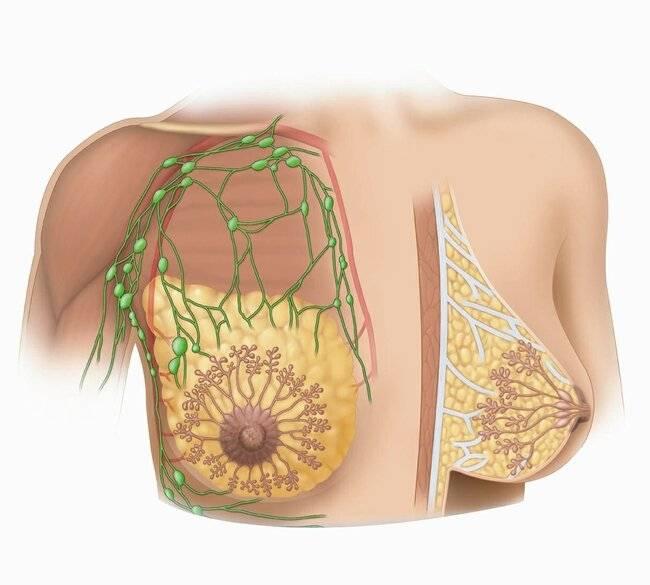 Признаки мастопатии молочной железы при климаксе: лечение и симптомы
