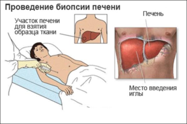 Алкогольный цирроз печени: симптомы, признаки, стадии