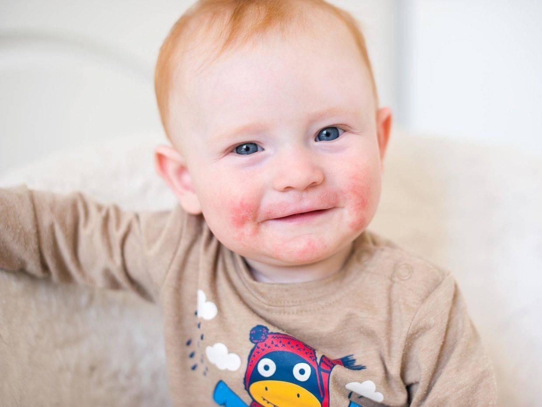 Атопический дерматит с рождения и до 3-х лет - запись пользователя катерина (ropotamo) в дневнике - babyblog.ru