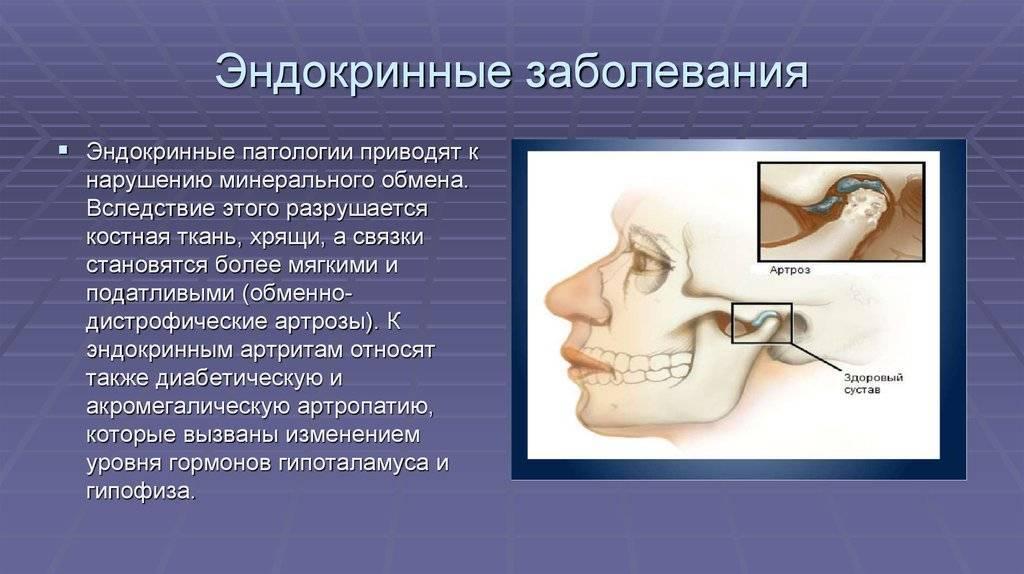 эндокринные заболевания симптомы