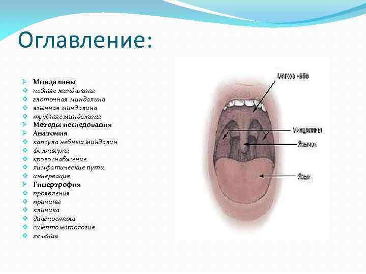 Доктор комаровский – увеличены миндалины у ребенка: лечение гипертрофии гланд и рыхлых миндалин, как лечат