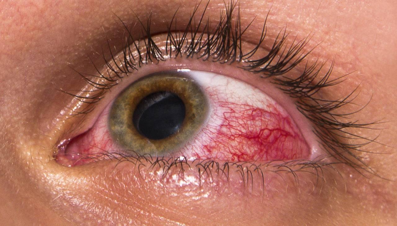 Химический ожог глаз – первая помощь, лечение и восстановление