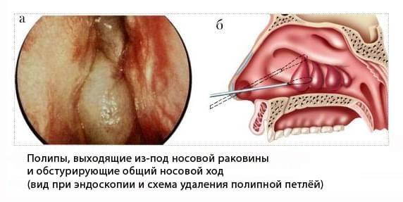 Синусит: причины, признаки, диагностика, лечение, профилактика