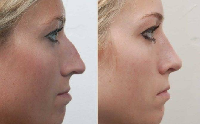 Почему шелушится и краснеет кожа на носу