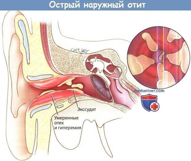 Лечение диффузного наружного отита