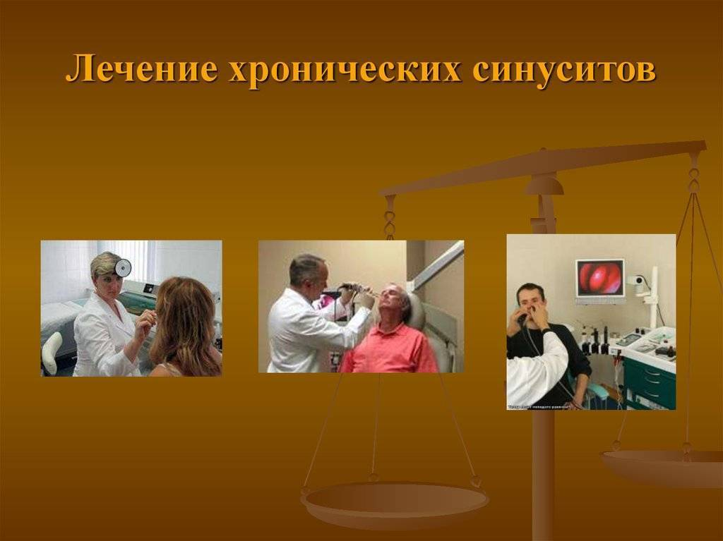 что такое хронический синусит и как его лечить