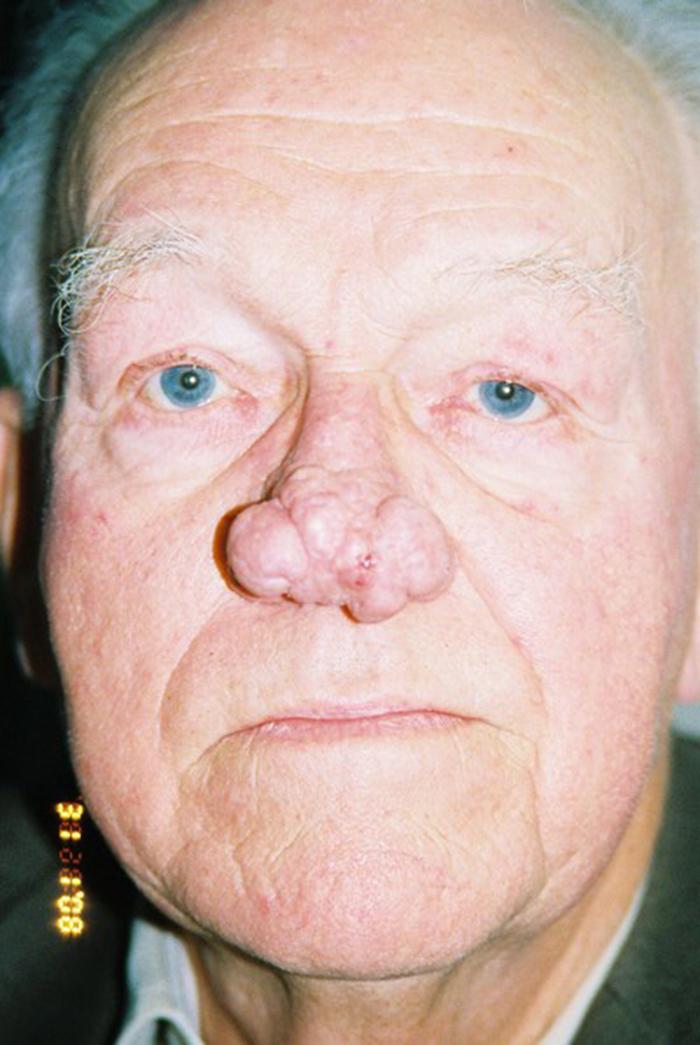 Первые симптомы образования раковой опухоли в носу