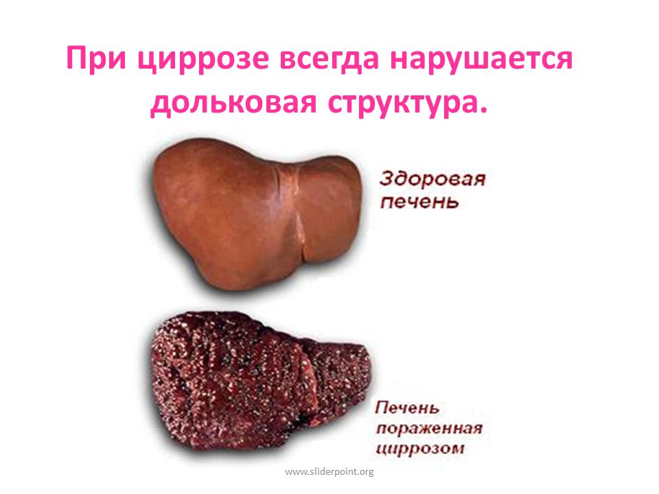 Получение инвалидности при циррозе печени