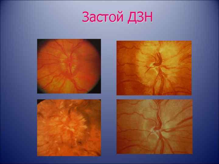 Атрофия зрительного нерва — лечение частичной и полной атрофии