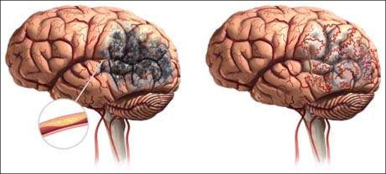 атеросклероз мозговых артерий