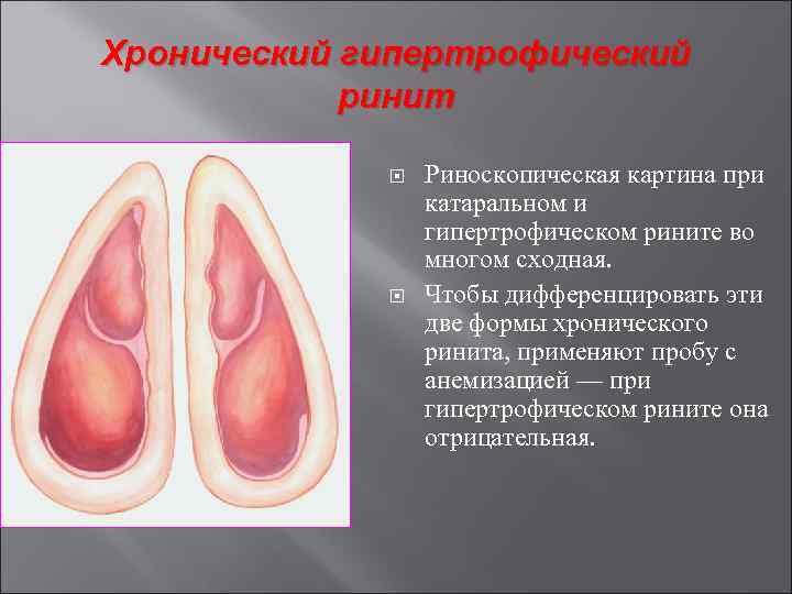 Причины острого и хронического катарального ринита, их лечение
