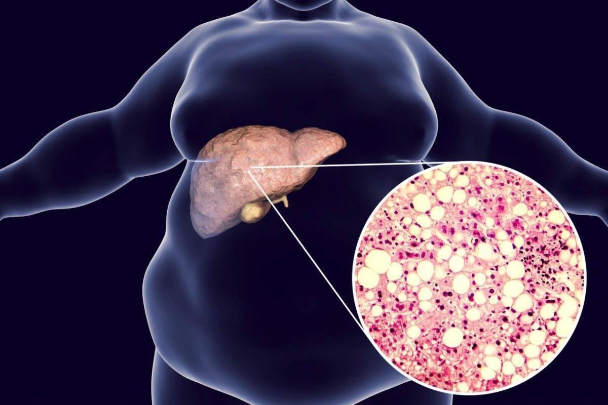 лечение стеатоза печени медикаментозно