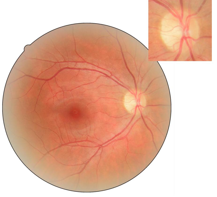 лечение атрофии зрительного нерва стволовыми клетками