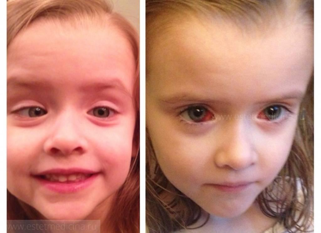 операция на косоглазие у детей
