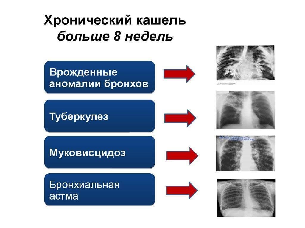 Почему развивается кашель с мокротой без температуры у взрослого и как его лечить