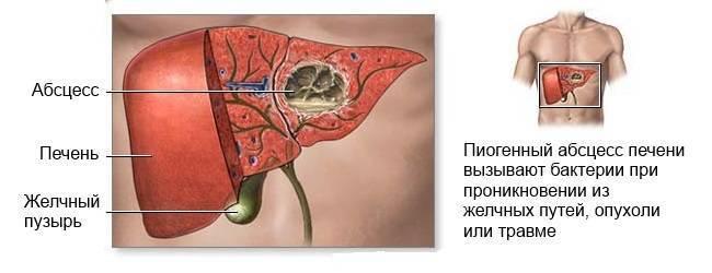 Абсцесс печени: что это такое, лечение, симптомы и причины — симптомы