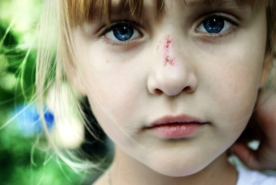Травмы носа: причины, симптомы, диагностика и лечение