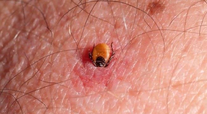 паразиты на коже