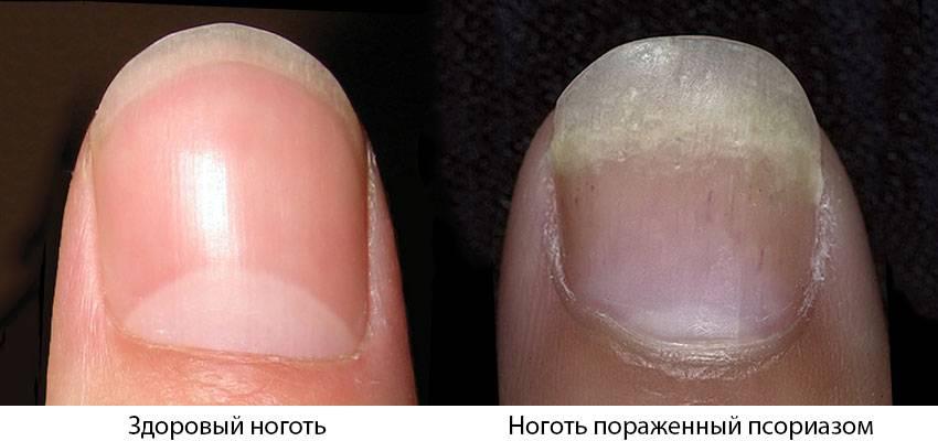 Причины и лечение псориаза ногтей на ногах и руках