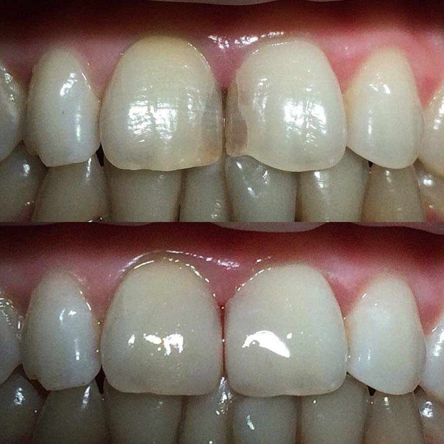 Художественная реставрация зубов, виды, плюсы и минусы