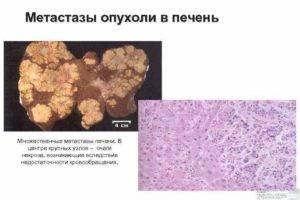 сколько живут с метастазами в печени