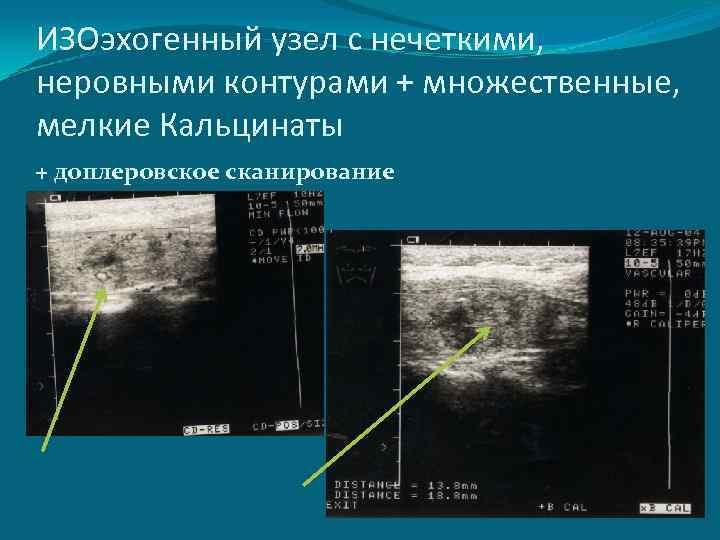 Кальцинированный узел в щитовидной железе лечение