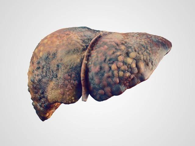 Продолжительность жизни с циррозом печени
