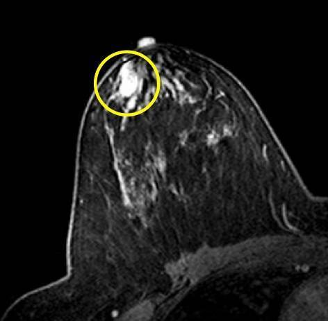 Внутрипротоковая папиллома молочной железы – как предупредить рак?