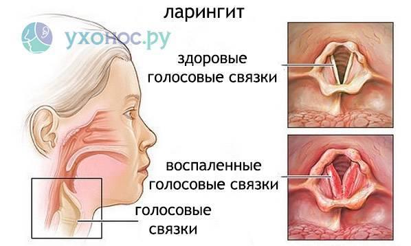 Острый ларингит. клинические рекомендации.