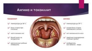 Воспаление миндалин у детей – комаровский