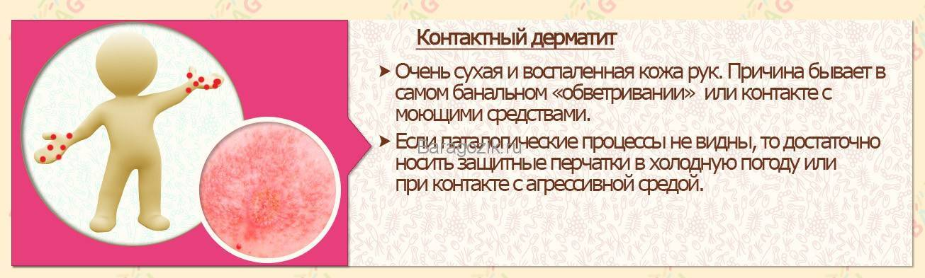 Дерматит, виды, симптомы и лечение
