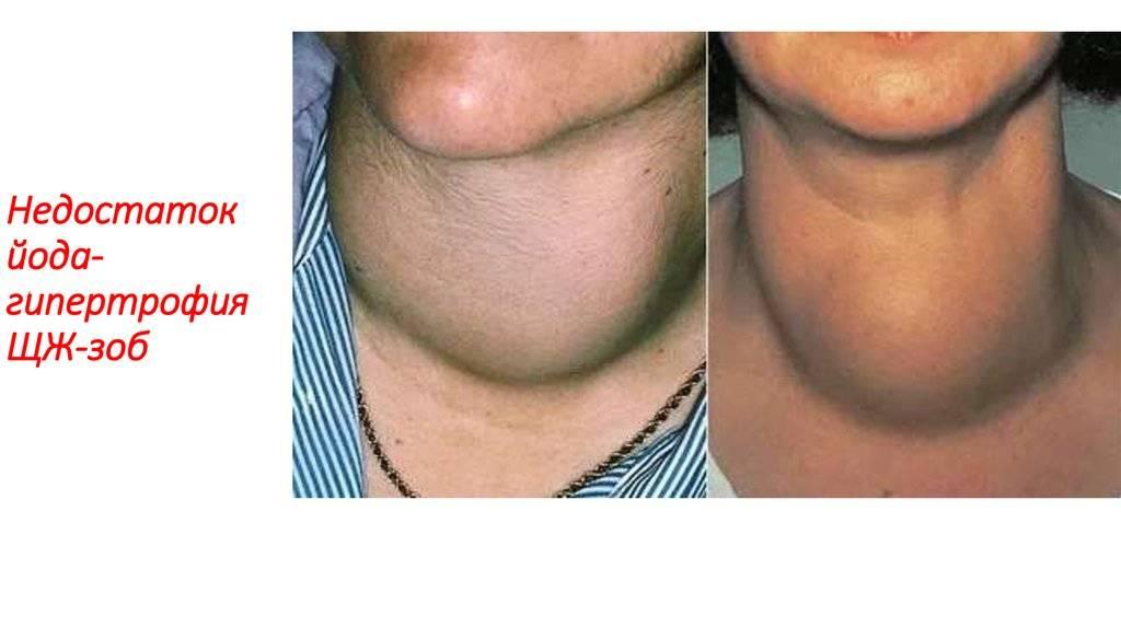О чем говорит повышение или понижение ттг после удаления щитовидки