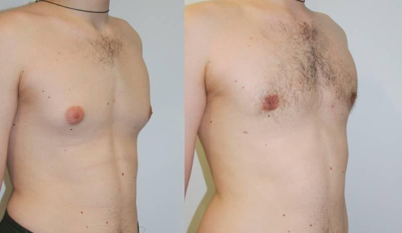Восстановление после операции при гинекомастии: особенности реабилитации