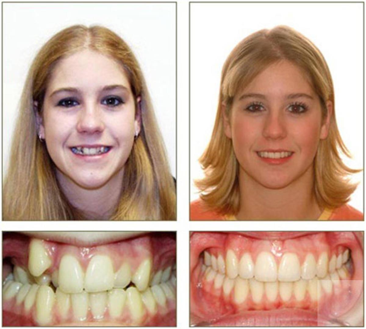 Как снимают брекеты — процесс снятия зубной системы
