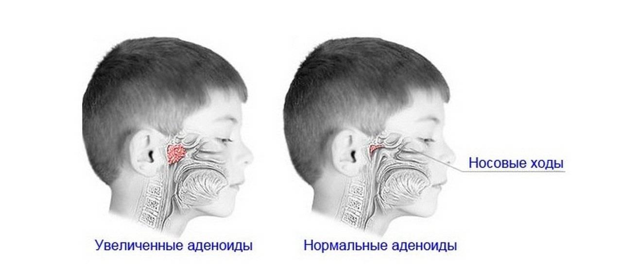 Лечение острого аденоидита у детей