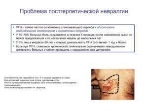 Постгерпетическая невралгия: симптомы, причины, лечение в домашних условиях (препараты, народные средства)