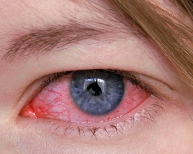 Дергается мышца под глазом. у меня уже паника. - дергается под глазом - запись пользователя ира (id981483) в сообществе зачатие в категории негинекологические заболевания и зачатие - babyblog.ru