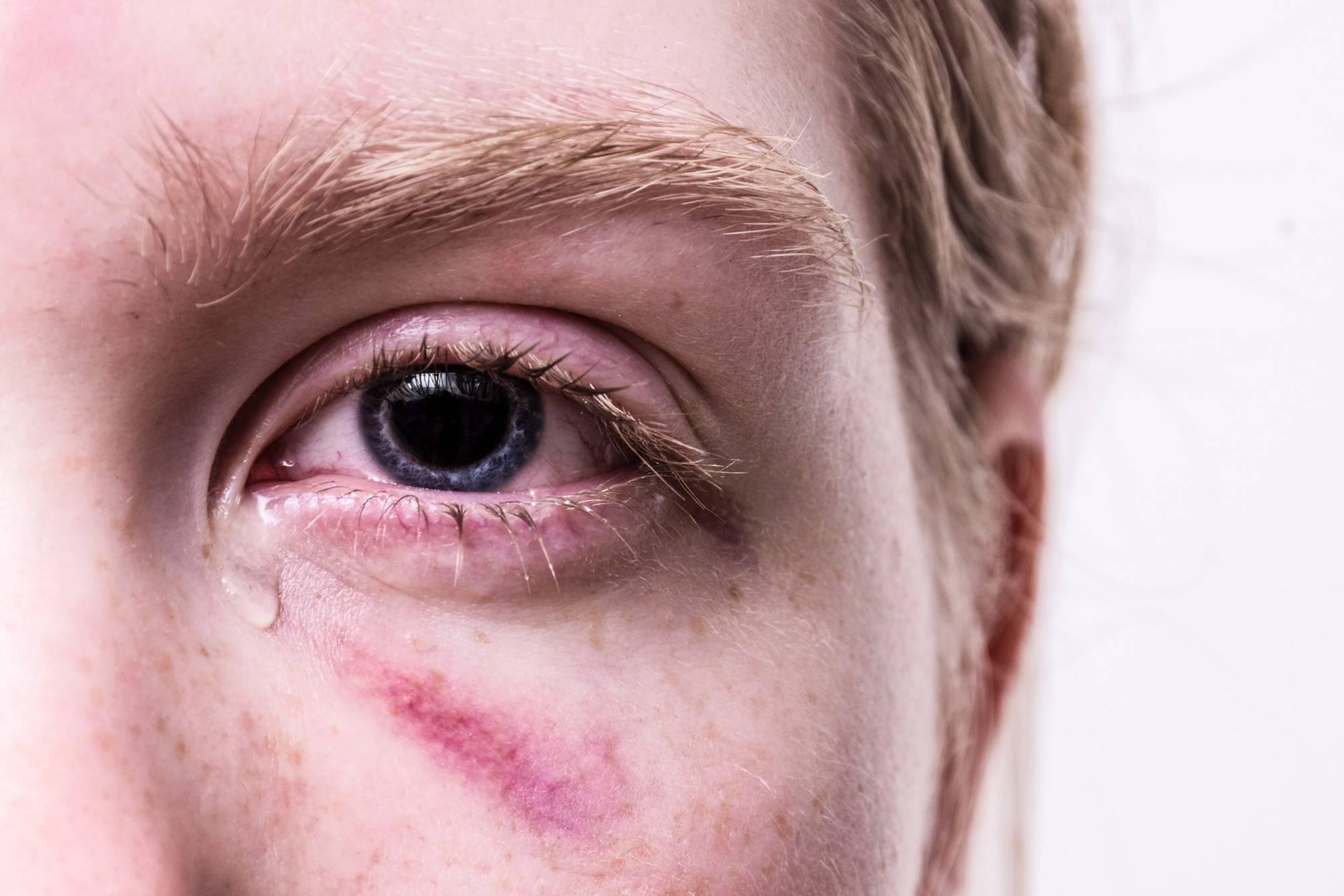 После удара глаз мутно видит