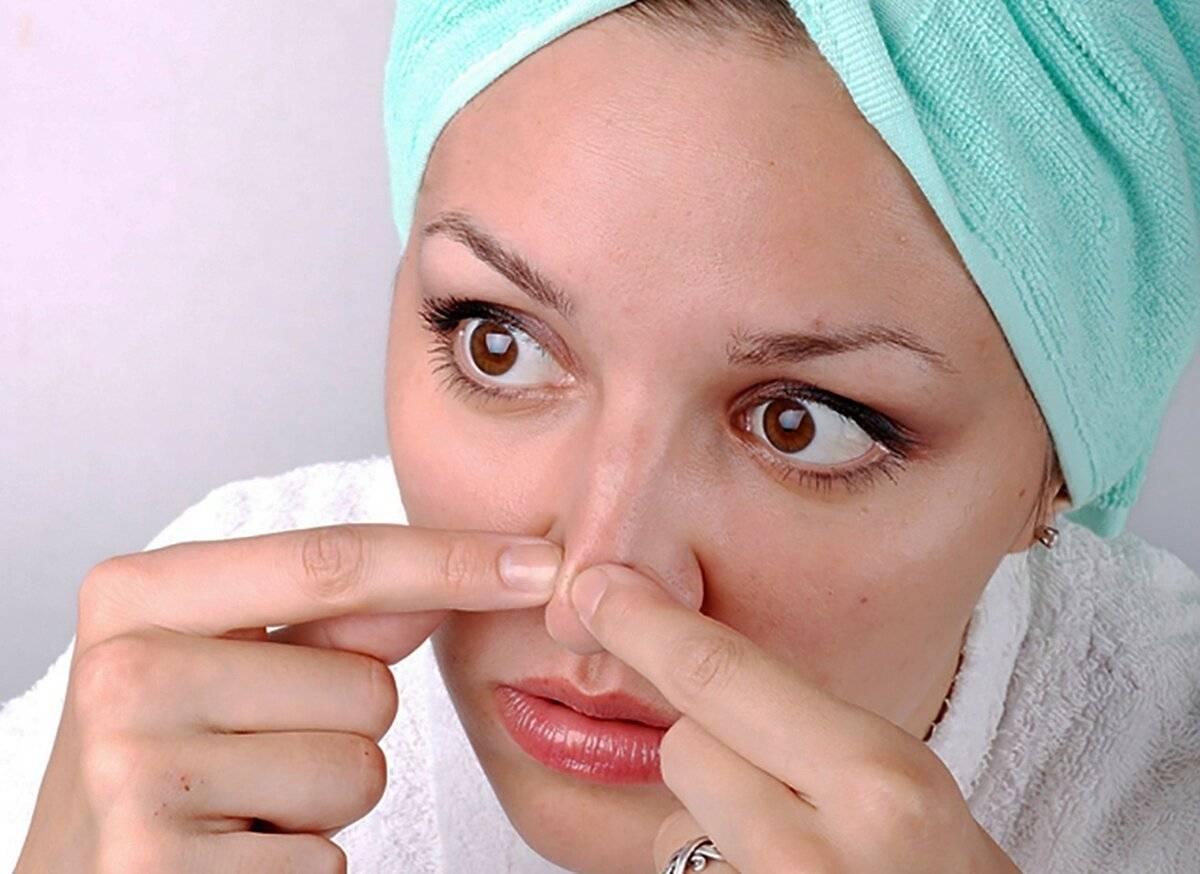 Как убрать сливу с носа быстро, как избавиться от сливы