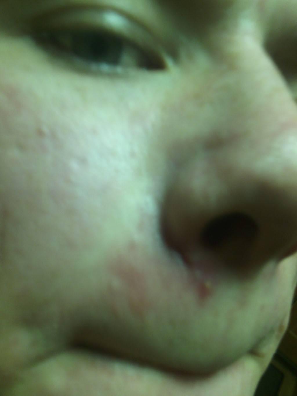 мазь для носа от болячек