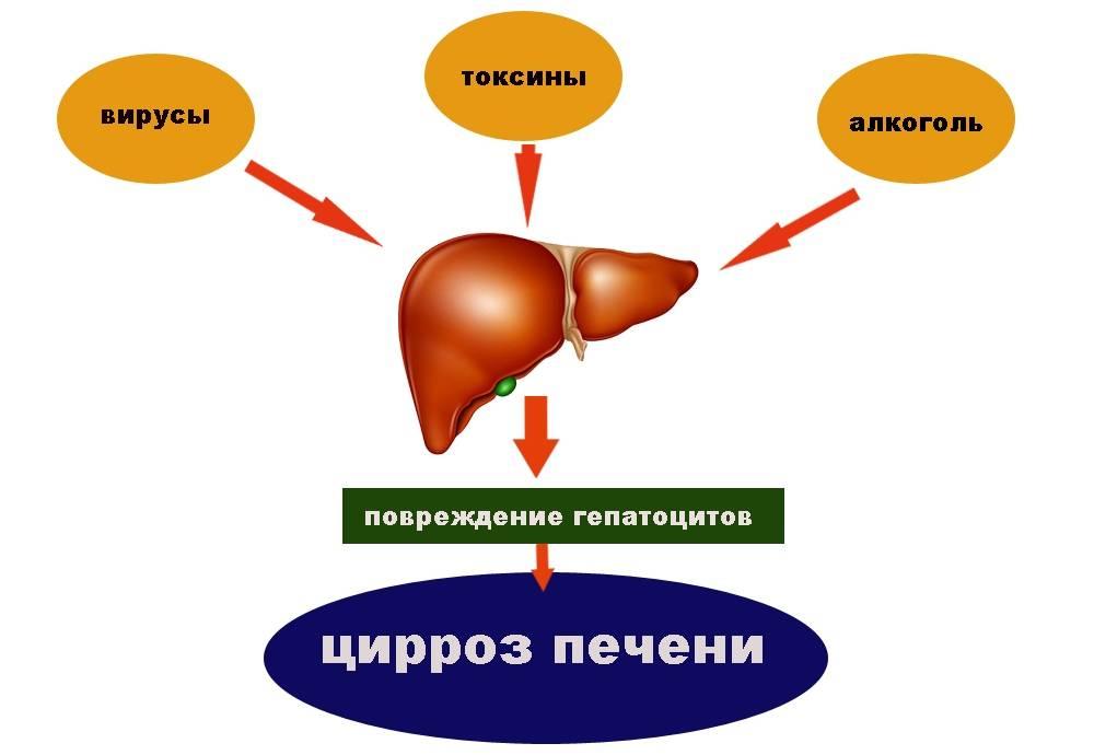 от чего возникает цирроз печени