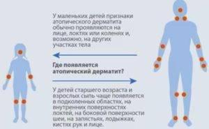 Как мы боролись с атопическим дерматитом (пищевая аллергия) - запись пользователя ирина (id1219011) в сообществе пищевая аллергия - babyblog.ru